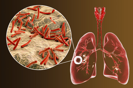 Fibrous-cavernous pulmonary tuberculosis and close-up view of Mycobacterium tuberculosis bacteria, 3D illustration showing cavity in the lung Foto de archivo