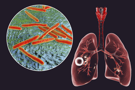 Fibrous-cavernous pulmonary tuberculosis and close-up view of Mycobacterium tuberculosis bacteria, 3D illustration showing cavity in the lung Banco de Imagens