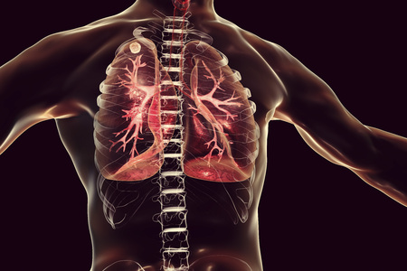 Secondary tuberculosis in lungs, apical nodule, 3D illustration Stock Photo