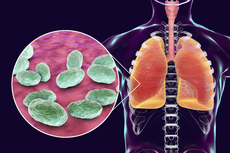 Pneumonia caused by Haemophilus influenzae bacteria, medical concept, 3D illustration. Gram-negative coccobacilli, the causative agents of pneumonia and infections of other location