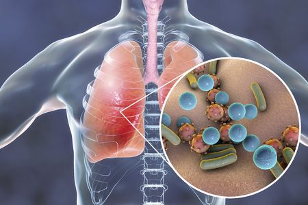 Pneumonia, medical concept, 3D illustration showing human lungs and close-up view of microbes in lungs