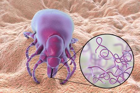 Batteri della malattia di Lyme, Borrelia burgdorferi, trasmessi da Ixodes tick, illustrazione 3D