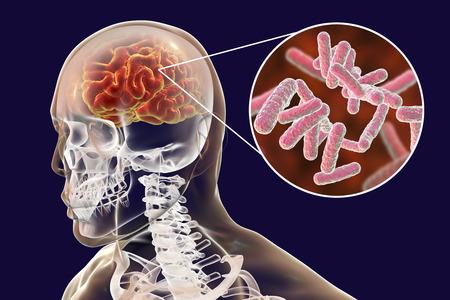 Bacterial brain infection medical concept, meningitis, encephalitis, 3D illustration Stock Photo