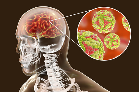 Japanese B encephalitis, medical concept, 3D illustration showing brain infection and close-up view of Japanese encephalitis viruses in the brain Stock Photo