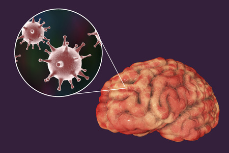 Herpes virus encephalitis, medical concept, 3D illustration showing brain infection and close-up view of Herpes viruses in the brain