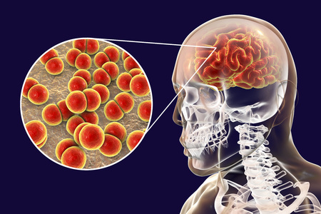 Brain infection with Neisseria meningitidis bacteria, 3D illustration. Gram-negative diplococci that cause meningitis and encephalitis