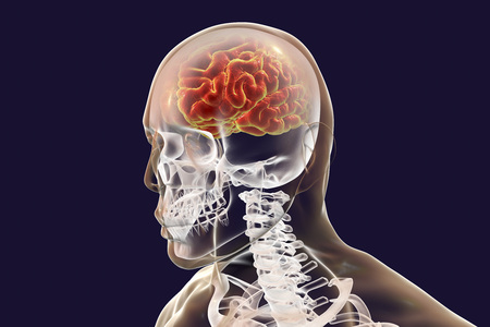 Human brain highlighted inside body, 3D illustration. Medical concept for brain disease and infection, meningitis, encephalitis