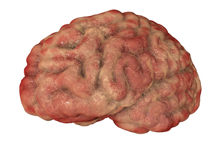 Encephalitis concept, 3D illustration showing edema and hemorrhages in brain