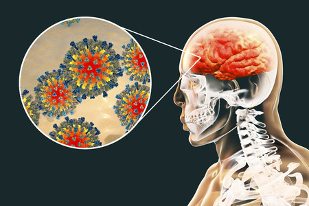 Measles-induced encephalitis, medical concept, 3D illustration showing brain infection and close-up view of Measles viruses Stock Photo