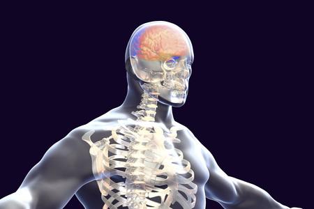 Encephalitis concept, 3D illustration showing edema and hemorrhages in brain highlighted inside human body Reklamní fotografie