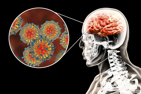 Measles-induced encephalitis, medical concept, 3D illustration showing brain infection and close-up view of Measles viruses Stock Illustration - 101690732