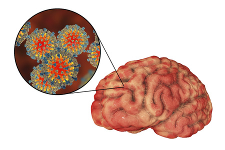 Measles-induced encephalitis, medical concept, 3D illustration showing brain infection and close-up view of Measles viruses Фото со стока