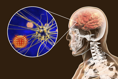 Viral meningitis and encephalitis, medical concept, 3D illustration showing brain infection and close-up view of viruses in the brain Reklamní fotografie
