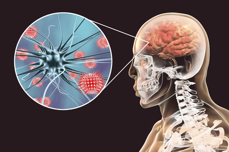 Viral meningitis and encephalitis, medical concept, 3D illustration showing brain infection and close-up view of viruses in the brain Imagens