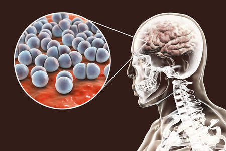 Brain infection caused by Streptococcus pneumoniae bacteria, medical concept, 3D illustration Stock Photo
