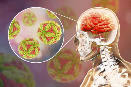Japanese encephalitis, medical concept, 3D illustration showing brain infection and close-up view of Japanese encephalitis viruses in the brain Stock Illustration - 101756063