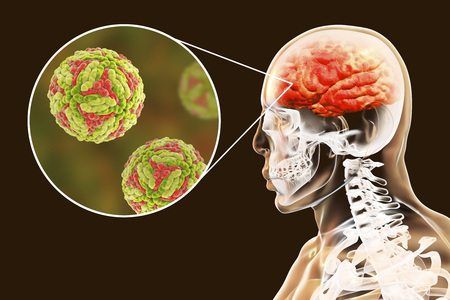 Japanese encephalitis, medical concept, 3D illustration showing brain infection and close-up view of Japanese encephalitis viruses in the brain
