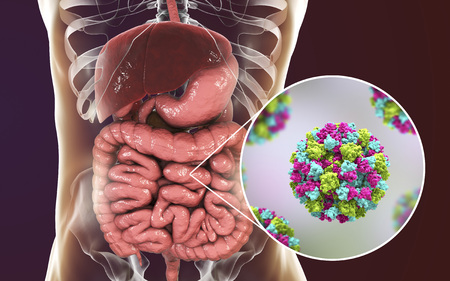 Norovirus in human intestine, also called winter vomiting bug, RNA virus from Caliciviridae family, causative agent of gastroenteritis with diarrhea, vomiting, stomach pain. 3D illustration Stock Photo