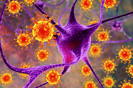 Virus que infectan las neuronas, concepto de infección cerebral, ilustración 3D