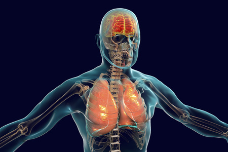 Human body with highlighted brain and lungs, concept for encephalitis and pneumonia infections and complications, 3D illustration