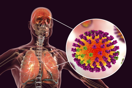 Influenza complications, conceptual image showing encephalitis and pneumonia with close-up view of flu viruses, 3D illustration 版權商用圖片