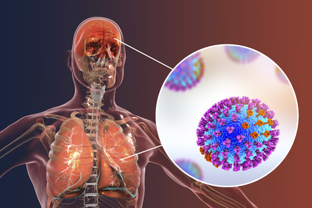 Influenza complications, conceptual image showing encephalitis and pneumonia with close-up view of flu viruses, 3D illustration Stock Photo