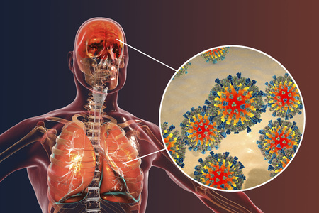 Measles induced complications, conceptual image. 3D illustration showing pneumonia and encephalitis with close-up view of measles viruses Stock Photo