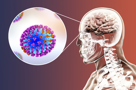 Influenza complication, conceptual image showing brain infection encephalitis with close-up view of flu viruses, 3D illustration Stock Photo
