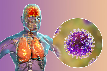 Nipah virus infection, newly emerging zoonotic infection with acute respiratory syndrome and severe encephalitis, 3D illustration Stock Photo