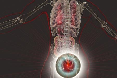 Hemorrhoids treatment and prevention concept, 3D illustration Stock Illustration - 102764129