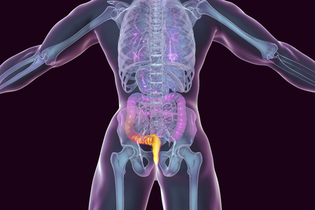 Hemorrhoids treatment and prevention concept, 3D illustration