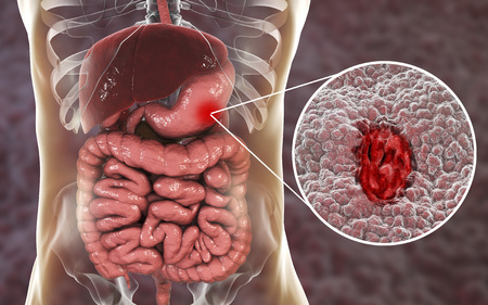 Gastric ulcer. Mucosa of stomach with ulcer and anatomy of human digestive system. 3D illustration Stock Photo