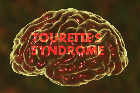 Tourettes syndrome, medical concept, 3D illustration. A neuropsychiatric disorder characterized by a spectrum of tic disorders