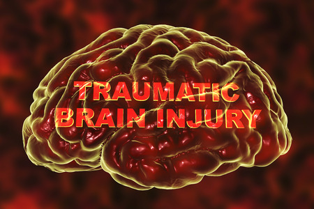 Traumatic injury of human brain, 3D illustration. Conceptual image showing the brain and traumatic brain injury text