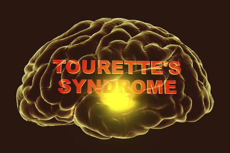 Tourettes syndrome, medical concept, 3D illustration. A neuropsychiatric disorder characterized by a spectrum of tic disorders Stok Fotoğraf - 104097695
