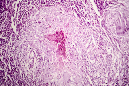 Histopathology of lymph nodal tuberculosis, light micrograph, hematoxylin and eosin staining