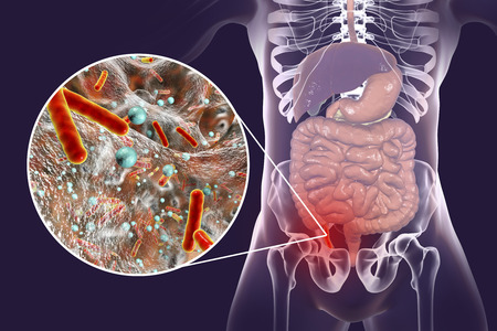 Acute appendicitis and close-up view of bacteria in appendix, the causative agent of appendicitis, 3D illustration