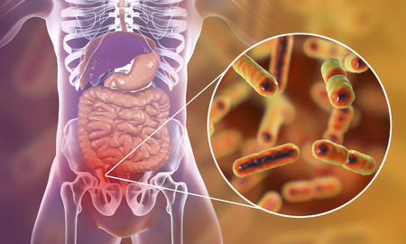Acute appendicitis caused by bacteria Bacteroides, Gram-negative anaerobic rod-shaped bacteria, one of the common causative agents of appendicitis, 3D illustration