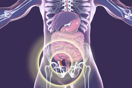 Acute appendicitis, 3D illustration showing inflammed appendix inside human body