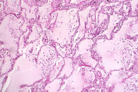 Histopathology of acute pulmonary edema, light micrograph showing accumulation of fluid inside alveoli Stock Photo