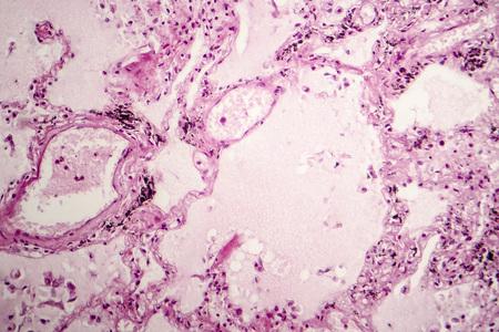 Histopathology of acute pulmonary edema, light micrograph showing accumulation of fluid inside alveoli