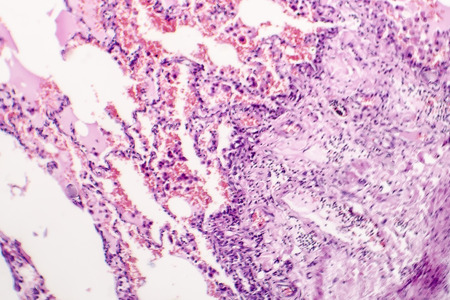 Chronic pulmonary congestion and edema, light micrograph