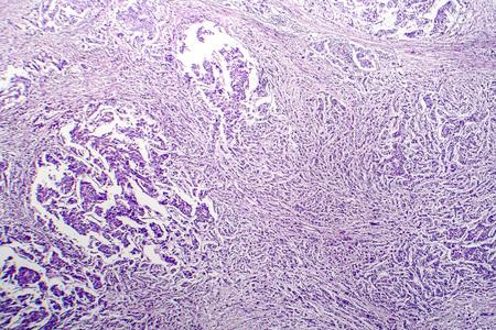 Lymph node cancer, light micrograph, photo under microscope Stock Photo