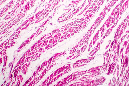 Brown atrophy of the heart, light micrograph, photo under microscope