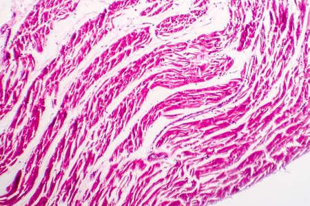 Atrofia marrón del corazón, micrografía de luz, fotografía microscópica Foto de archivo