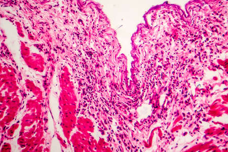 Signet ring cell carcinoma of the stomach, light micrograph, photo under microscope