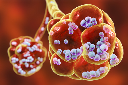 Pneumococcal pneumonia, medical concept. 3D illustration showing bacteria Streptococcus pneumoniae inside alveoli