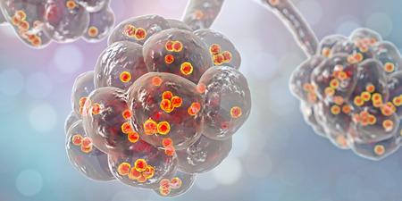 Staphylococcal pneumonia, medical concept. 3D illustration showing bacteria Staphylococcus aureus inside alveoli Stock Photo