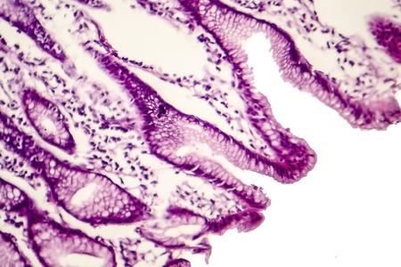 Metaplasia intestinal del estómago, micrografía de luz, fotografía bajo microscopio