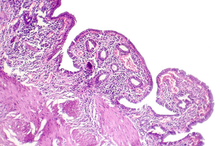 Chronic cholecystitis, light micrograph, photo under microscope showing fibrosis and muscular hypertrophy of gallbladder wall, entrapped epithelial crypts